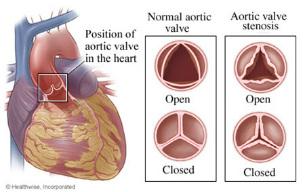 Heart valves diagram