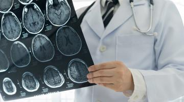 Doctor examines results from a brain PET scan