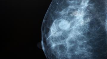 Mammogram of breast tissue