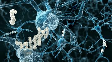 Image of Amyloid plaques on axons of neurons affected by Alzheimer's disease